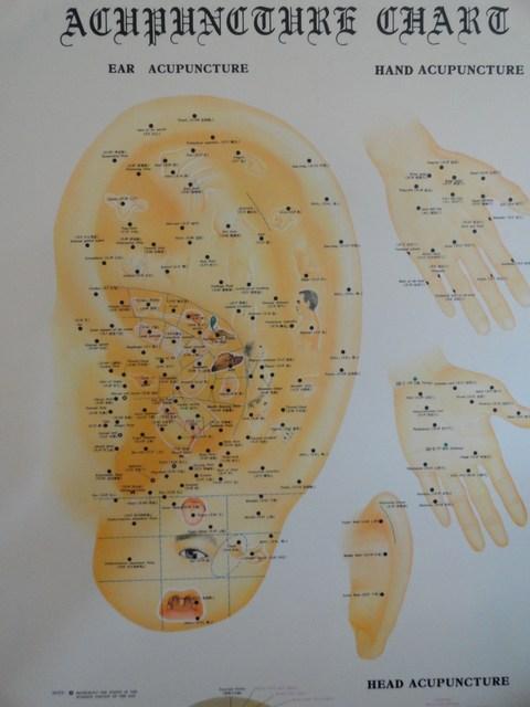 Punti di riflesso agopuntura